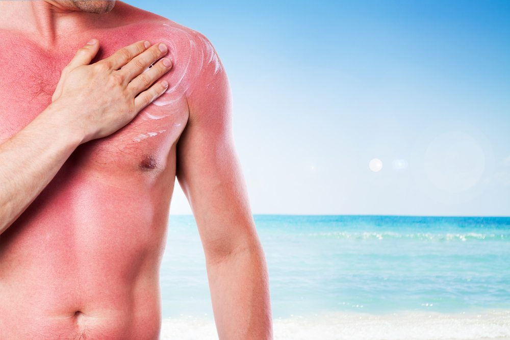 Doch einen Sonnenbrand muss man heute nicht mehr bekommen. (Bild: © Sedlacek - shutterstock.com)